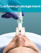 Luchtwegmanagement